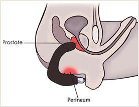 Querschnitt Anatomie Mann - Prostata