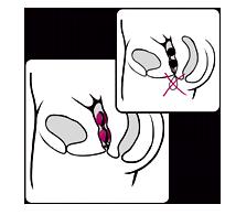 Die patentierte Rückholschlaufe von Joyballs secret Liebeskugeln.